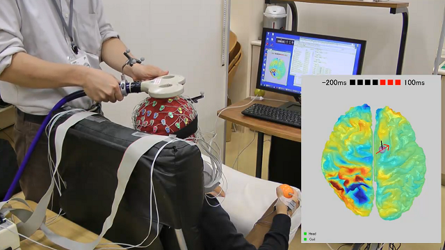 脳活動を確認しながらTMSを行える装置
